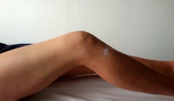 Meine Knie-Operation